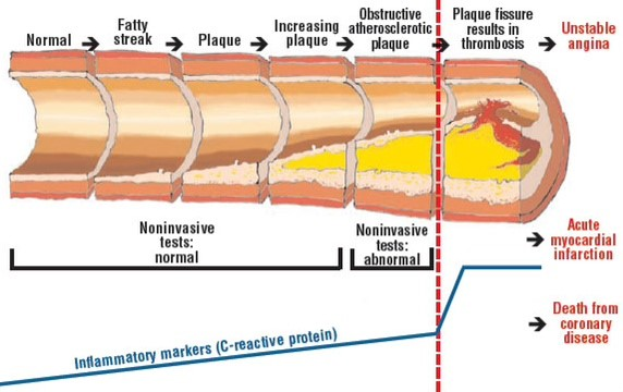 Blockage of blood vessels