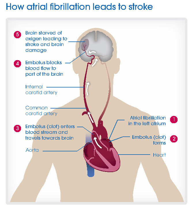 How Atrial Fibrillation leads to stroke