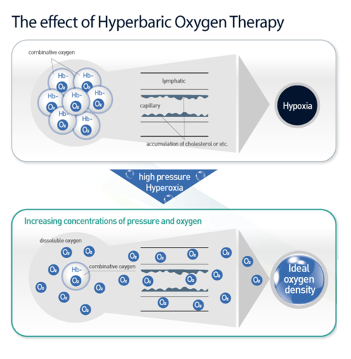 Effects of Hyperbaric Oxygen Therapy
