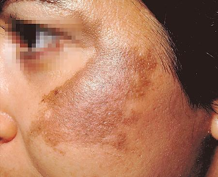 Woman with melasma on her cheek Source: birminghamskinclinic.com